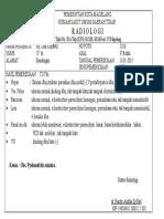 Pyelonefritis Sinistra