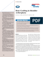 Bone Grafting in Shoulder Arthroplasty 2