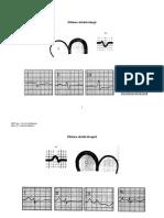 EKG Hipertrofie Si Ischemie