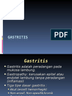 Gastritis and Peptic Ulcer Disease