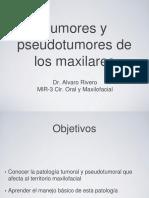 Tumores de Maxilares Ppt