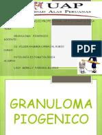 Caso Clinico Granuloma Piogenico