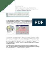 Cómo Leer El Electroencefalograma