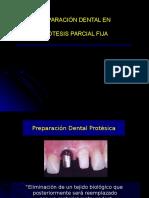 preparacindental-130115183206-phpapp02