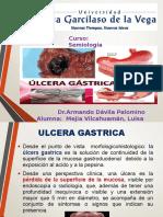Ulcera Actual