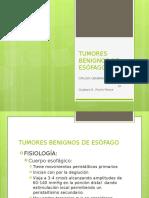 TUMORES BENIGNOS DE ESÓFAGO