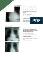 Review Radiologi Foto Thoraks