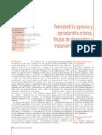 166 CIENCIA Periodontitis Agresiva Cronica