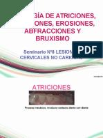 etiologadeatricionesabrasioneserosionesabfraccionesybruxismo-120522192652-phpapp02