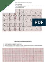 Practica de Electrocardiograma