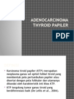 Adenocarcinoma Thyroid Papiler