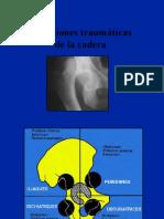 04_traumatologia_luxaciones.pdf