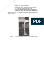 Prosedur Metode Stimson Pada Dislokasi Bahu