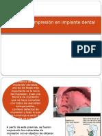 Técnicas de Impresión en Implante Dental