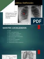 Lesion Quistica