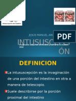 Intosuscepción.pptx