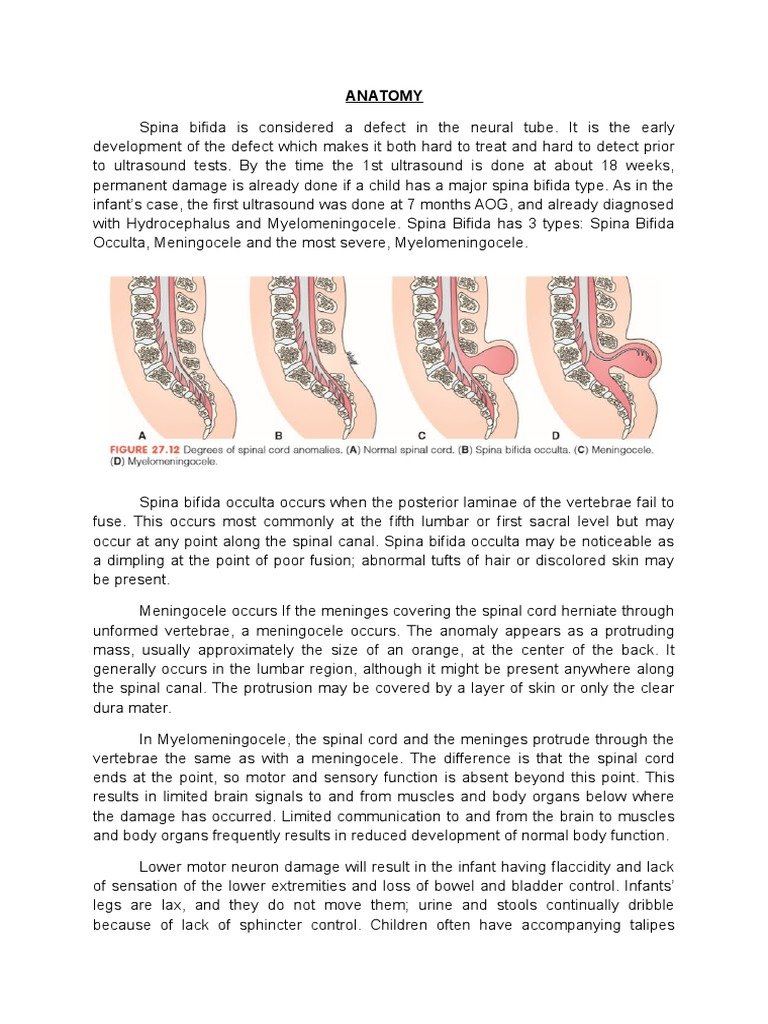 Groß Spina Bifida Anatomie Ideen - Anatomie Ideen - finotti.info