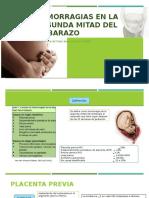 Hemorragias en La Segunda Mitad Del Embarazo