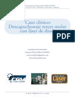 Caso Clinico - Descapuchonaje con Laser de Diodo
