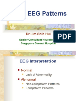 EEG Lecture Normal EEGs