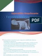 Espondilitis Anquilosante ok1