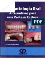 Implantología Oral - Pedrola