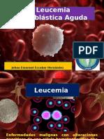 leucemia linfoblastica aguda 3D.pptx