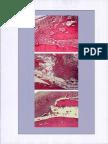 Utilization of Ethyl Cyanoacrylate and 2-Octyl Cyanoacrylate Adhesives for Autogenous Bone Gr Fixation- Histomorphometric Study