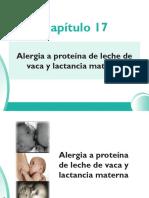 17_Alergia a Proteina
