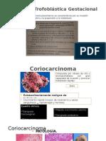 Neoplasia Trofoblastica