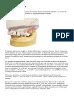 estetica dental chile