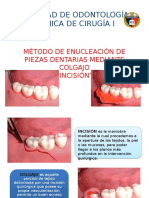 Extraccion Mediante Colgajo Incision