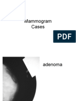 Mammogram Cases
