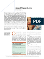 Treatment of Knee Osteoarthritis
