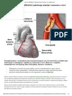 zakrecenje arterija