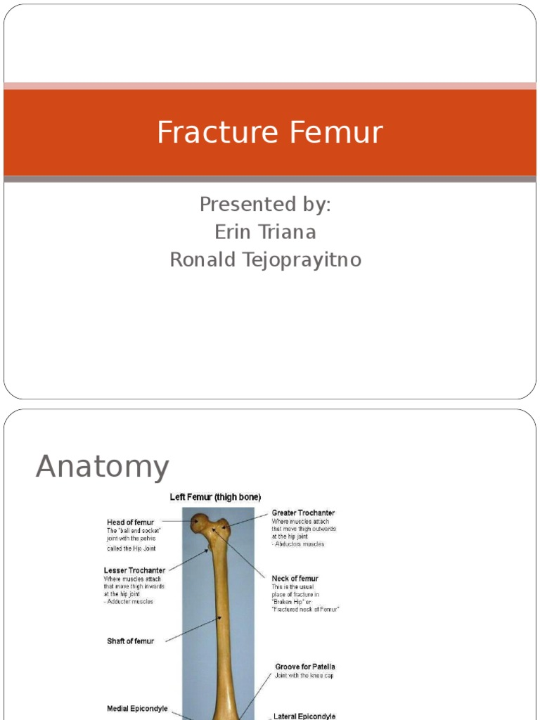 Fracture Femur | Musculoskeletal System | Lower Limb Anatomy