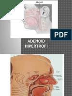 Adenoid Hipertrofi Siti