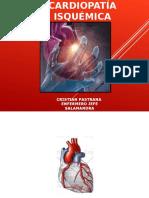 FISIOPATOLOGIA ATEROESCLEROSIS.ppt