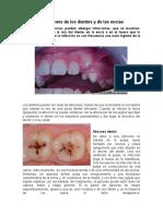 Infecciones de los dientes y de las encías.docx