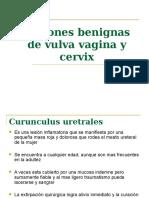 Lesiones Benignas de Vulva Vagina y Cervix