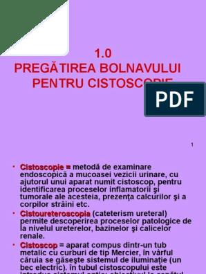 cistoscopia prostatite cronica