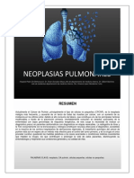Neoplasias Pulmonares XL
