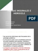 Hernias Inguinal en Niños