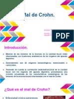 Mal de Crohn presentación
