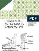 Congenital Talipes Equino Varus (CTEV) Year 5 Sayyid
