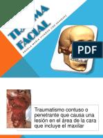94065245-trauma-facial-120602051544-phpapp01