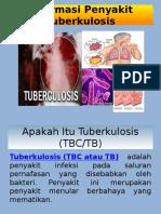 3. TUBERKULOSIS