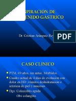 ASPIRACIÓN DE CONTENIDO GÁSTRICO