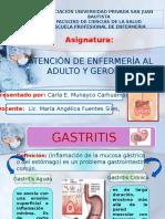 Gastritis - Ulceras Gastricas - Duodenal