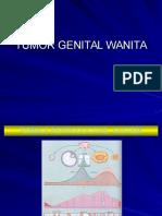 Tumor Genital Wanita